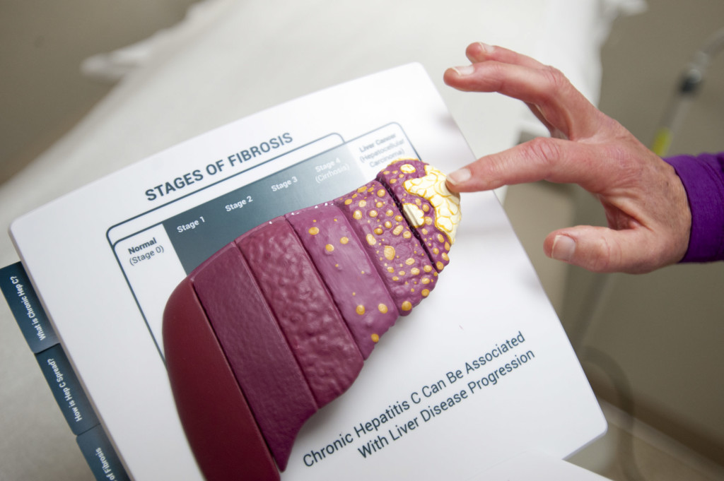 New Hepatitis C Treatments Offer Hope Of A Cure The
